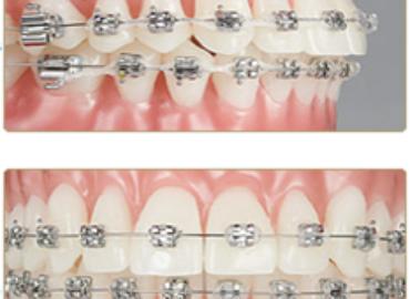 Aparate dentare pentru adulți și adolescenți/Tratamentul ortodontic la adulți și adolescenți