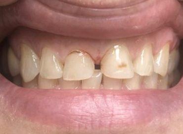 11, 21 uzuri dentare